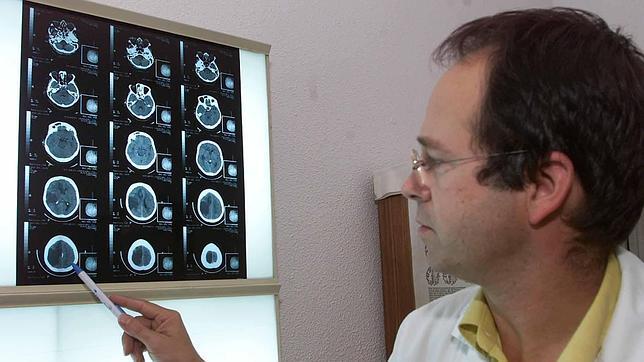 Neurologo a Domicilio
